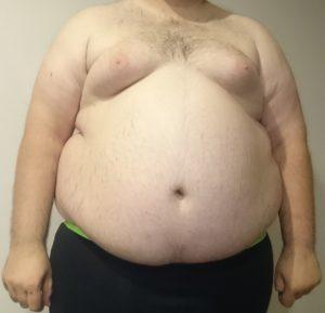 cukrzyca wwyniku otyłości